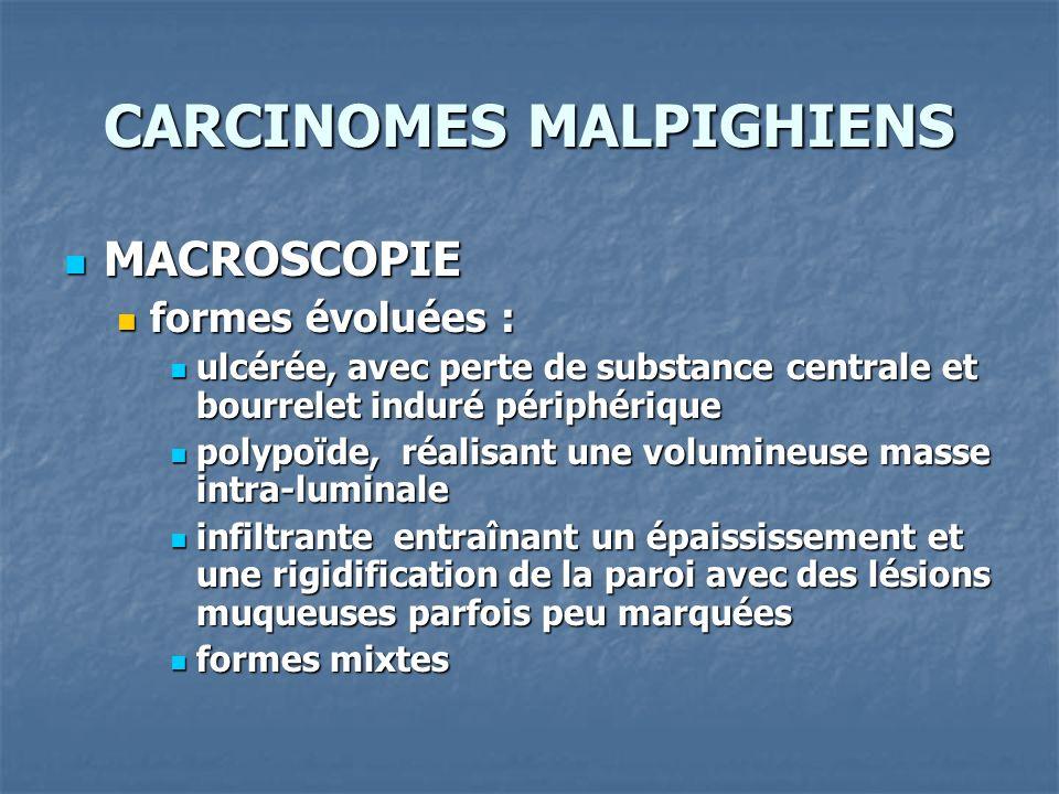 CARCINOMES MALPIGHIENS MACROSCOPIE MACROSCOPIE formes évoluées : formes évoluées : ulcérée, avec perte de substance centrale et bourrelet induré périp