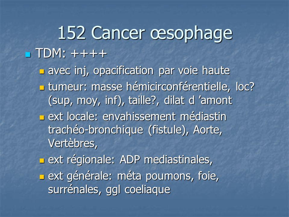 152 Cancer œsophage TDM: ++++ TDM: ++++ avec inj, opacification par voie haute avec inj, opacification par voie haute tumeur: masse hémicirconférentie