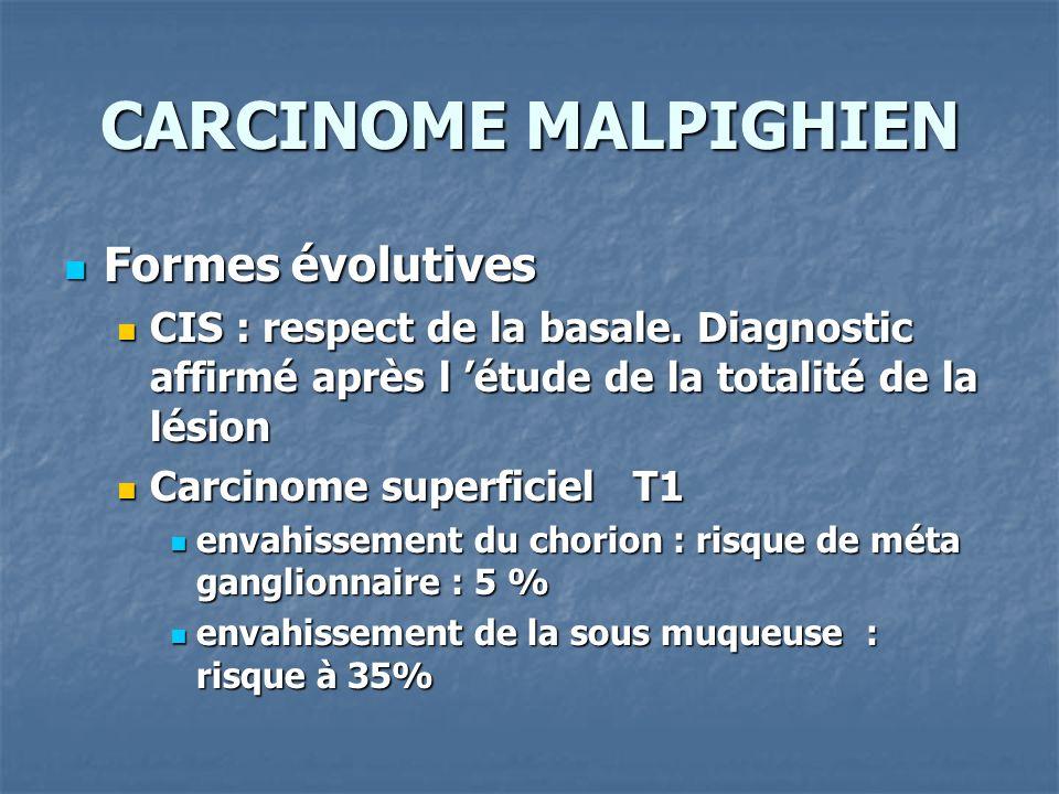 CARCINOME MALPIGHIEN Formes évolutives Formes évolutives CIS : respect de la basale. Diagnostic affirmé après l étude de la totalité de la lésion CIS