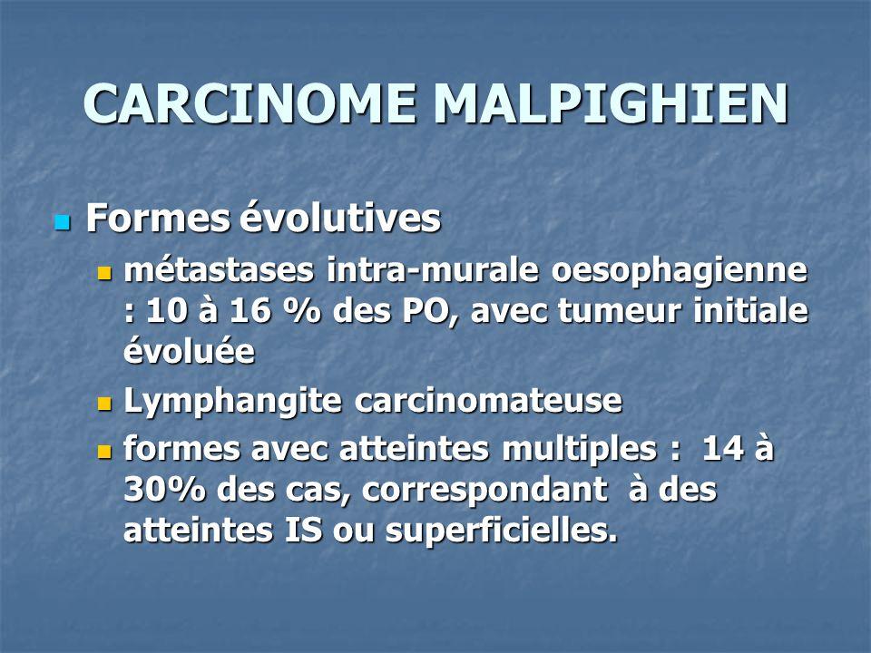 CARCINOME MALPIGHIEN Formes évolutives Formes évolutives métastases intra-murale oesophagienne : 10 à 16 % des PO, avec tumeur initiale évoluée métast