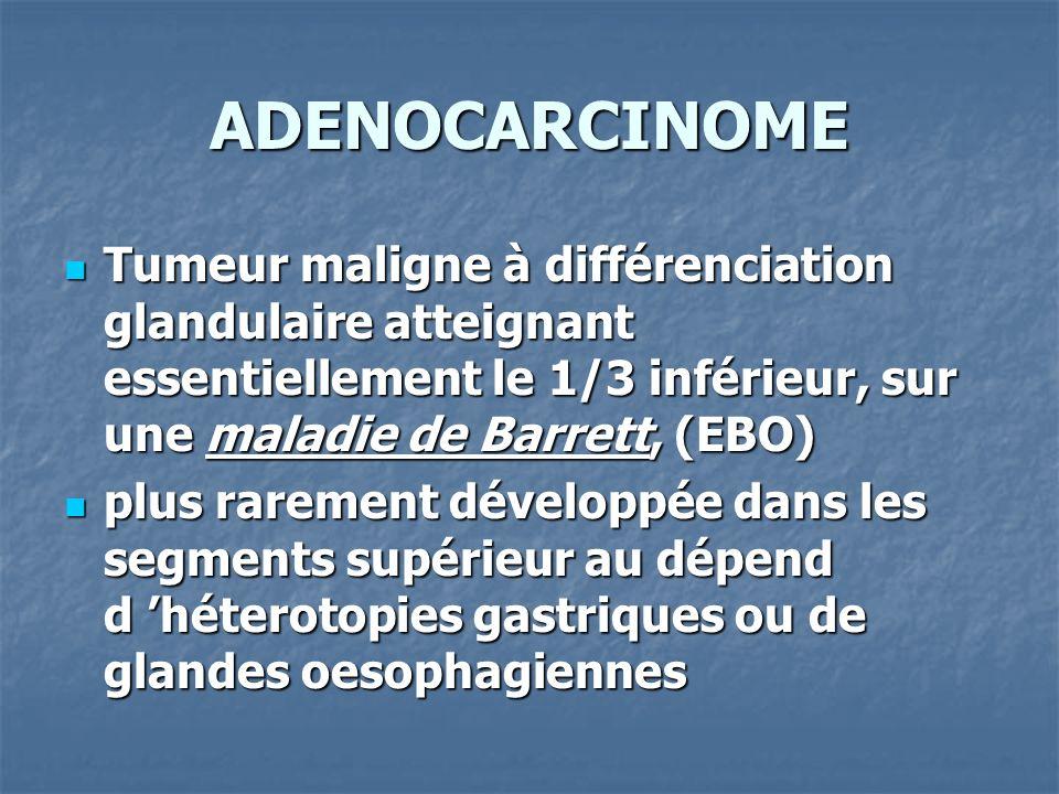 ADENOCARCINOME Tumeur maligne à différenciation glandulaire atteignant essentiellement le 1/3 inférieur, sur une maladie de Barrett, (EBO) Tumeur mali