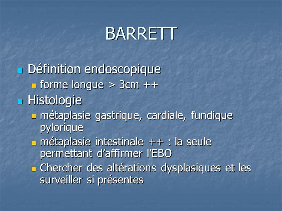BARRETT Définition endoscopique Définition endoscopique forme longue > 3cm ++ forme longue > 3cm ++ Histologie Histologie métaplasie gastrique, cardia