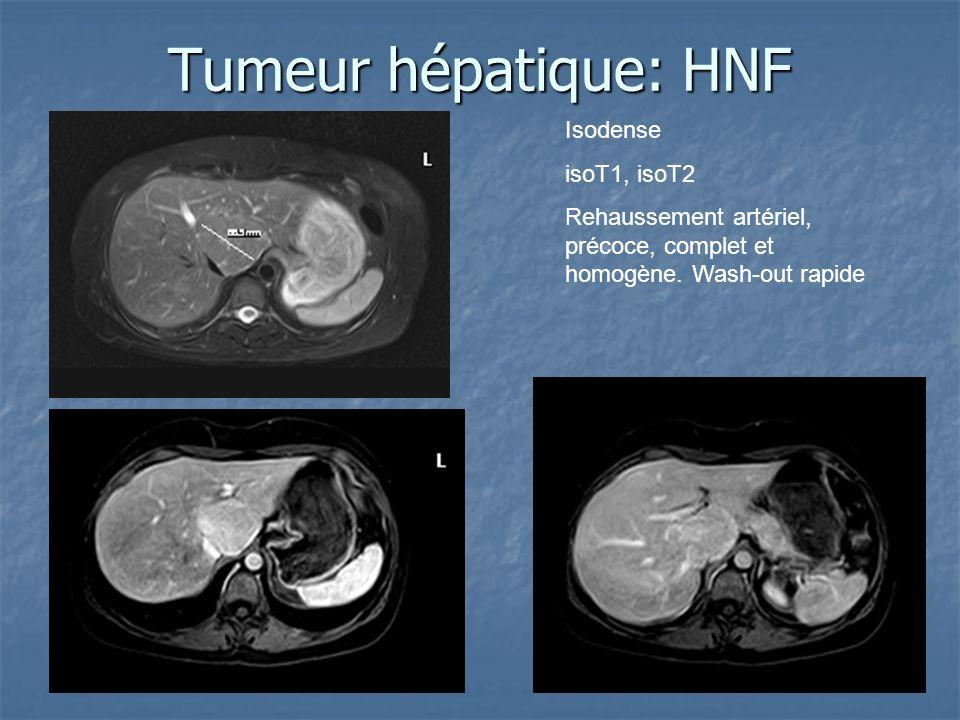 Tumeur hépatique: HNF Isodense isoT1, isoT2 Rehaussement artériel, précoce, complet et homogène. Wash-out rapide