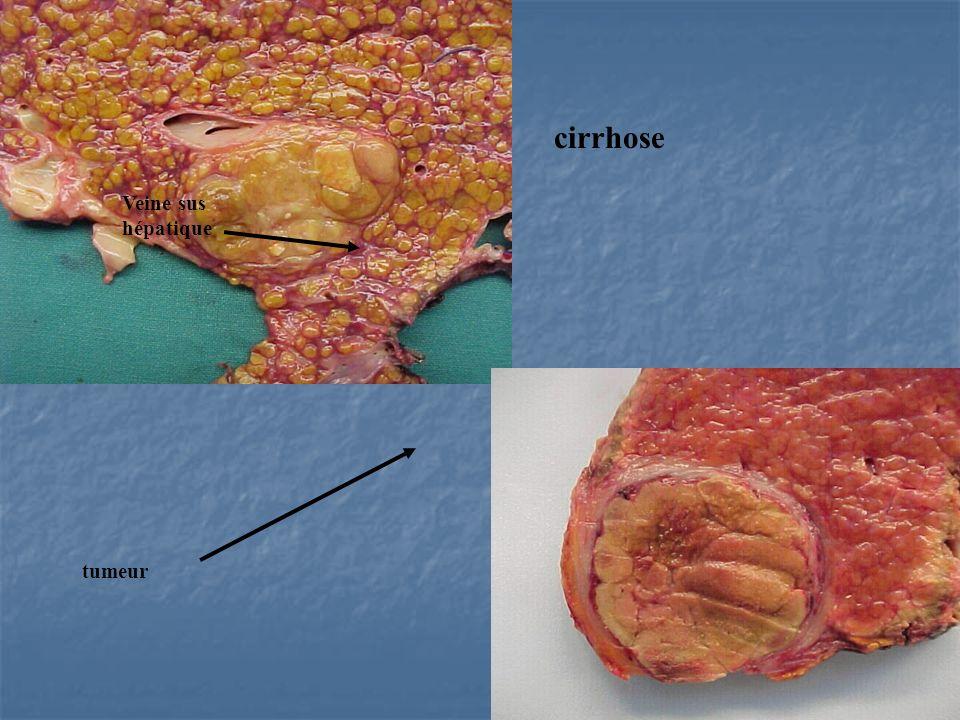 Veine sus hépatique cirrhose