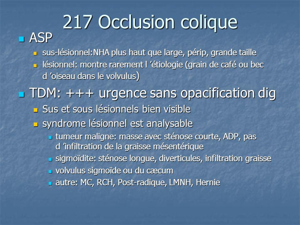 217 Occlusion colique ASP ASP sus-lésionnel:NHA plus haut que large, périp, grande taille sus-lésionnel:NHA plus haut que large, périp, grande taille