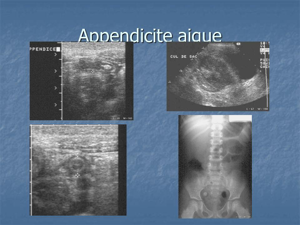 Appendicite aigue