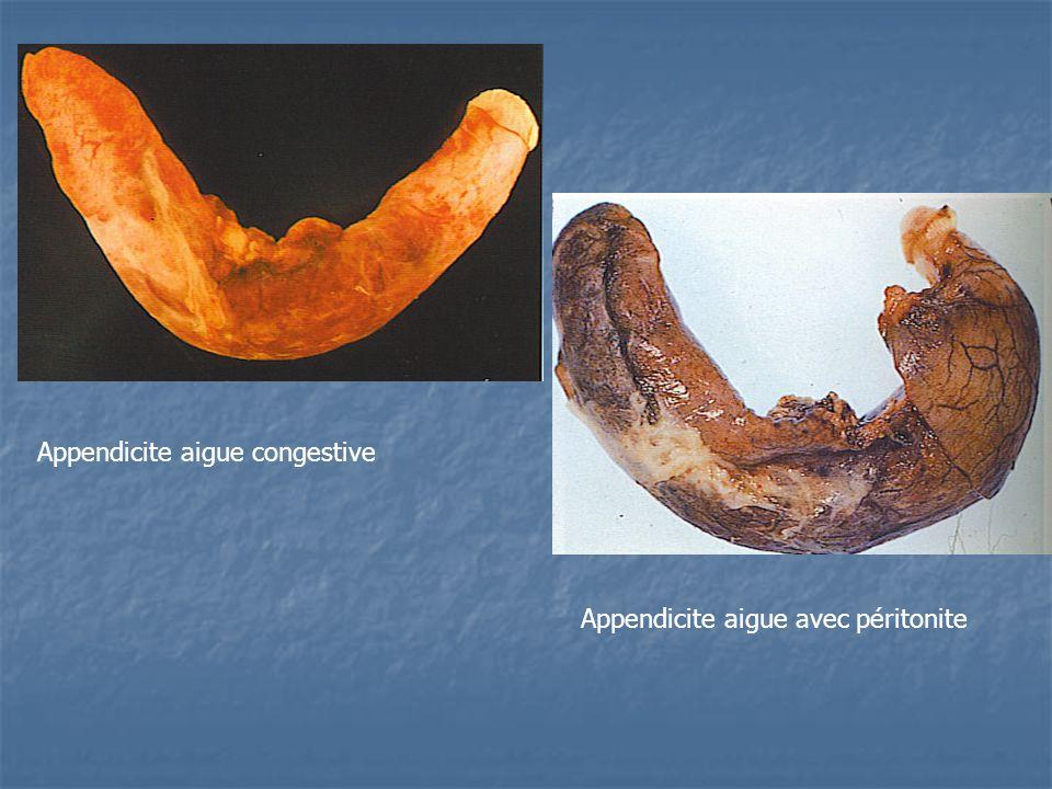 Appendicite aigue congestive Appendicite aigue avec péritonite