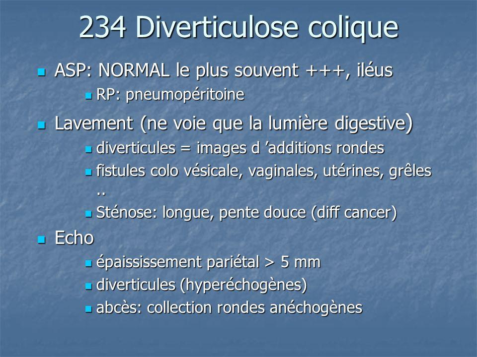 234 Diverticulose colique ASP: NORMAL le plus souvent +++, iléus ASP: NORMAL le plus souvent +++, iléus RP: pneumopéritoine RP: pneumopéritoine Laveme
