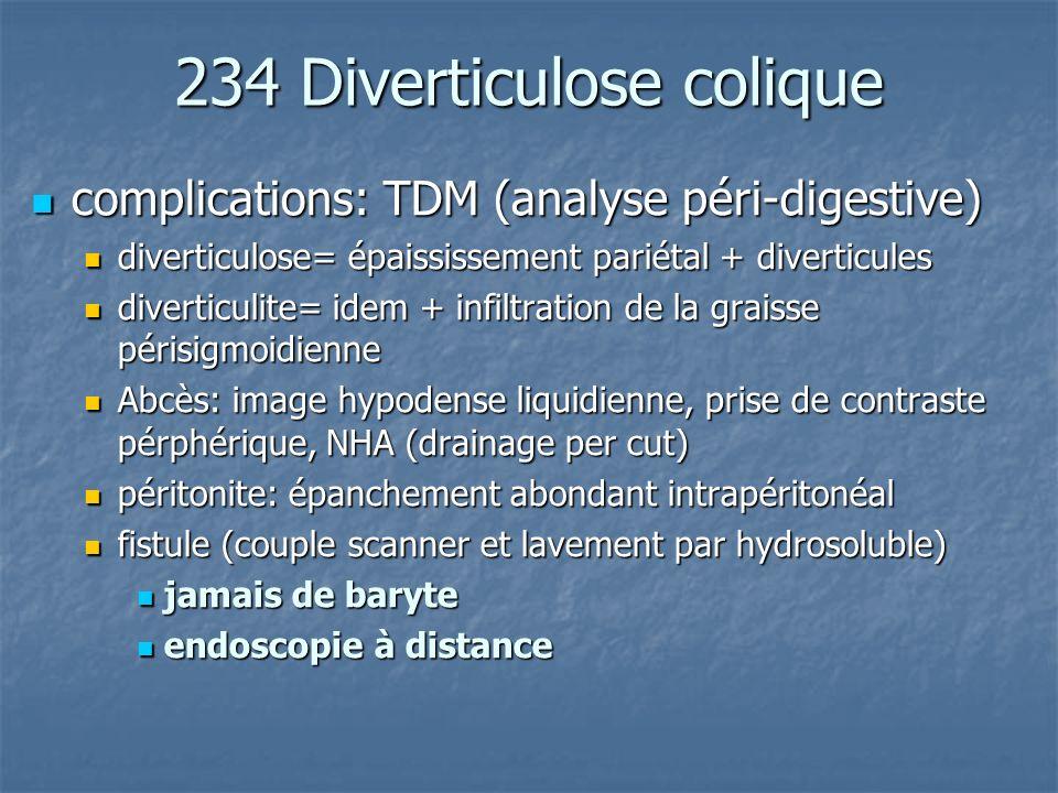 234 Diverticulose colique complications: TDM (analyse péri-digestive) complications: TDM (analyse péri-digestive) diverticulose= épaississement pariét