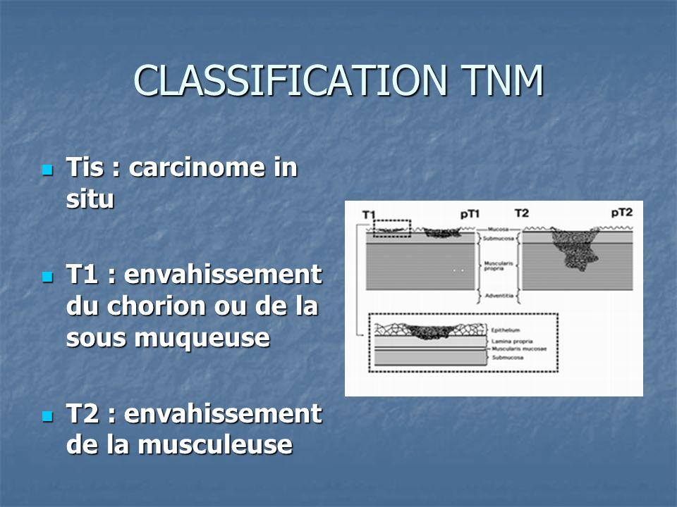 CLASSIFICATION TNM Tis : carcinome in situ Tis : carcinome in situ T1 : envahissement du chorion ou de la sous muqueuse T1 : envahissement du chorion