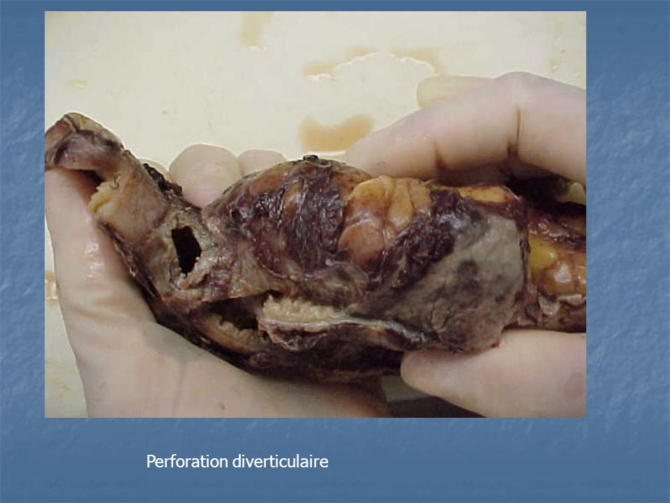 Perforation diverticulaire