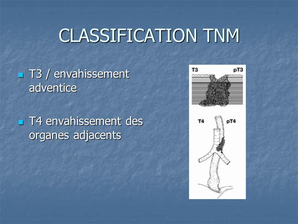 CLASSIFICATION TNM T3 / envahissement adventice T3 / envahissement adventice T4 envahissement des organes adjacents T4 envahissement des organes adjac
