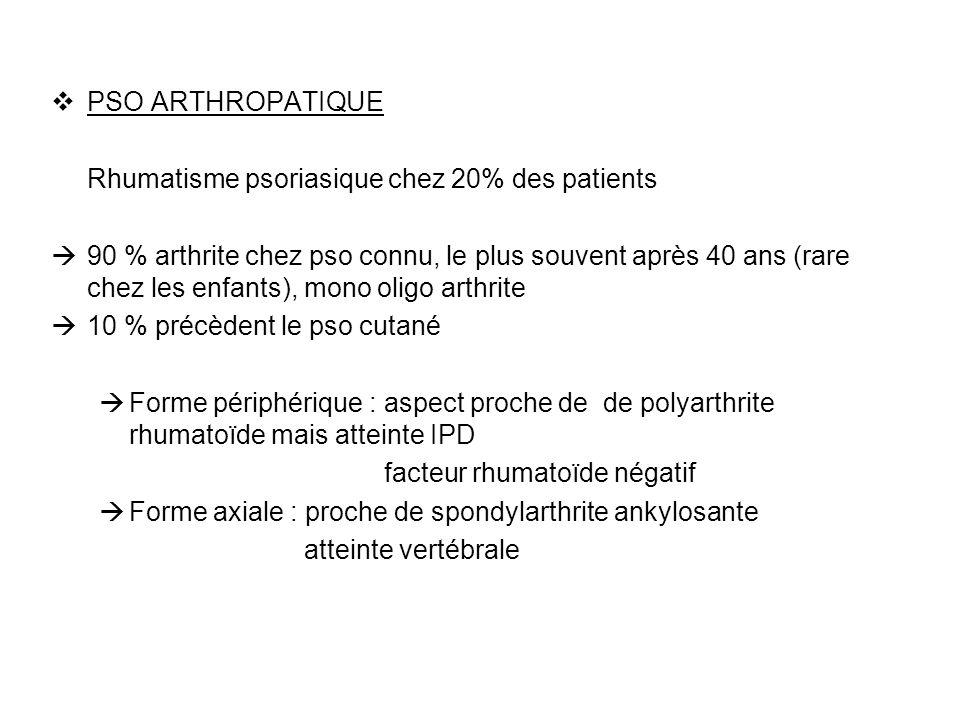 PSO ARTHROPATIQUE Rhumatisme psoriasique chez 20% des patients 90 % arthrite chez pso connu, le plus souvent après 40 ans (rare chez les enfants), mon