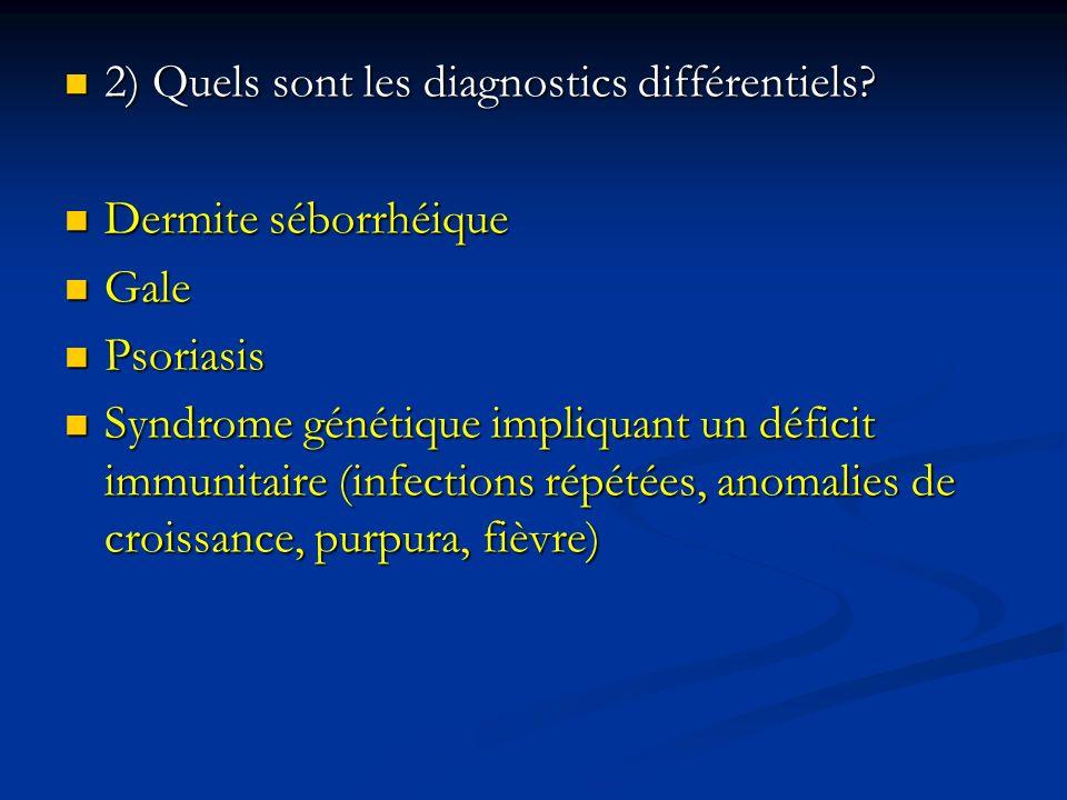 2) Quels sont les diagnostics différentiels? 2) Quels sont les diagnostics différentiels? Dermite séborrhéique Dermite séborrhéique Gale Gale Psoriasi