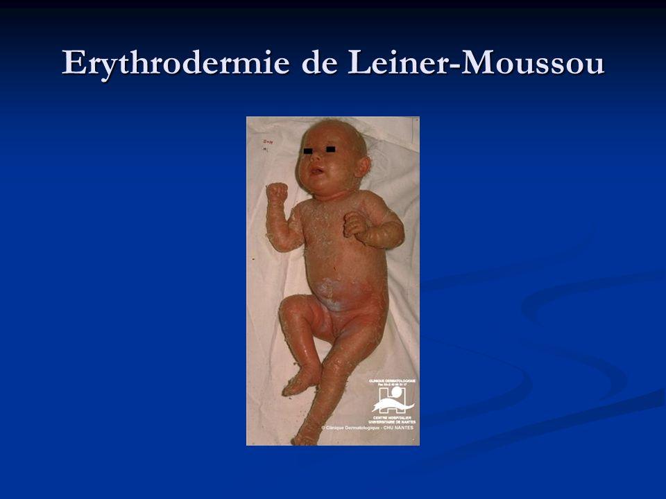 Erythrodermie de Leiner-Moussou