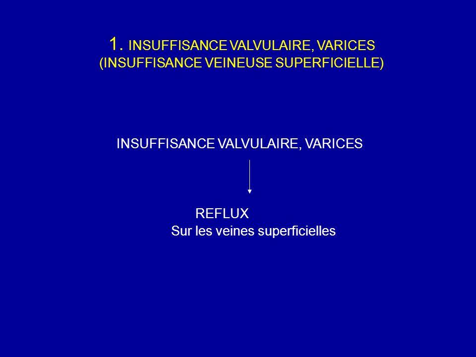 1. INSUFFISANCE VALVULAIRE, VARICES (INSUFFISANCE VEINEUSE SUPERFICIELLE) INSUFFISANCE VALVULAIRE, VARICES REFLUX Sur les veines superficielles