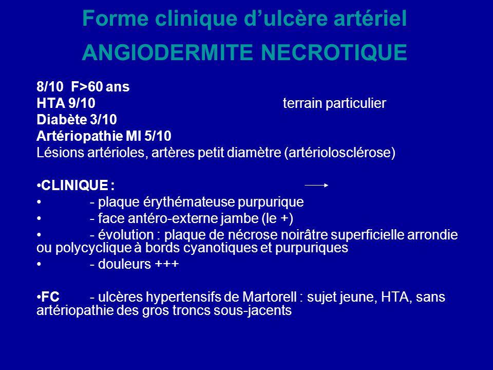 Forme clinique dulcère artériel ANGIODERMITE NECROTIQUE 8/10 F>60 ans HTA 9/10 terrain particulier Diabète 3/10 Artériopathie MI 5/10 Lésions artériol