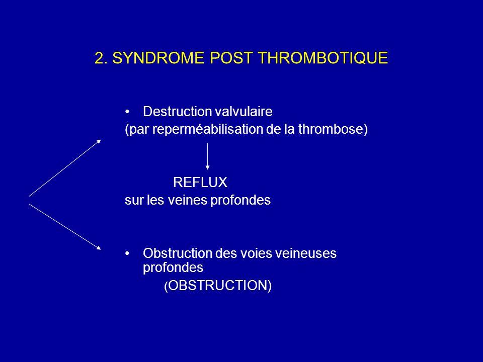 2. SYNDROME POST THROMBOTIQUE Destruction valvulaire (par reperméabilisation de la thrombose) REFLUX sur les veines profondes Obstruction des voies ve