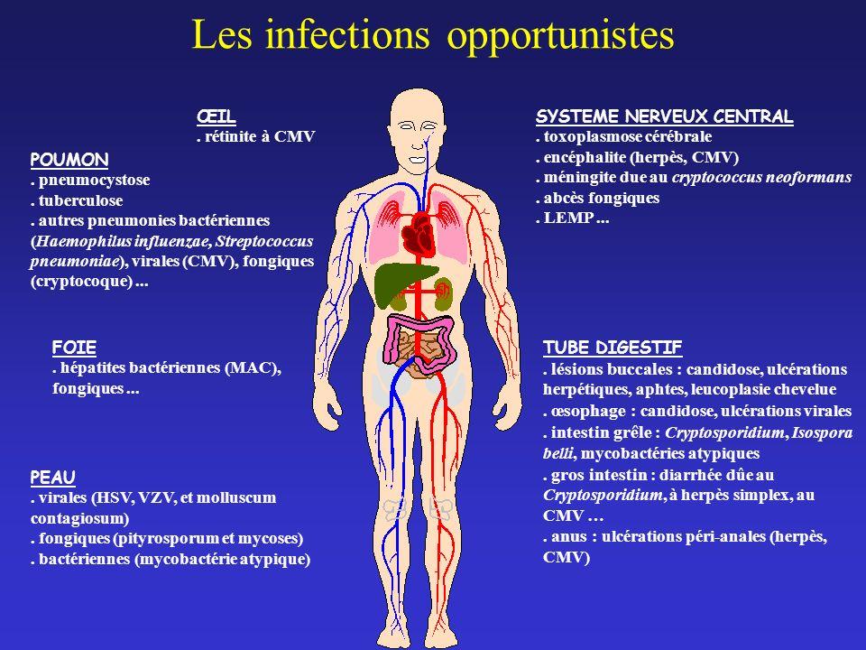 CANCERS SECONDAIRES.maladie de Kaposi. Lymphome. Cancer du col utérin MALADIES NEUROLOGIQUES.
