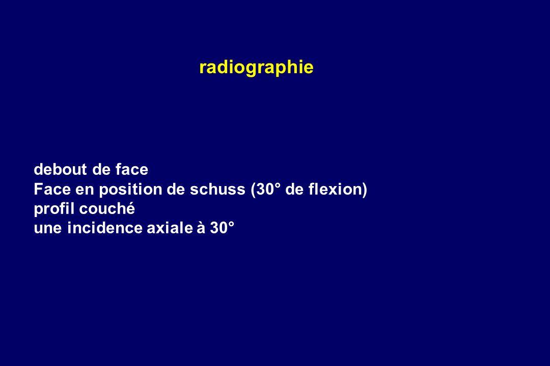 radiographie debout de face Face en position de schuss (30° de flexion) profil couché une incidence axiale à 30°