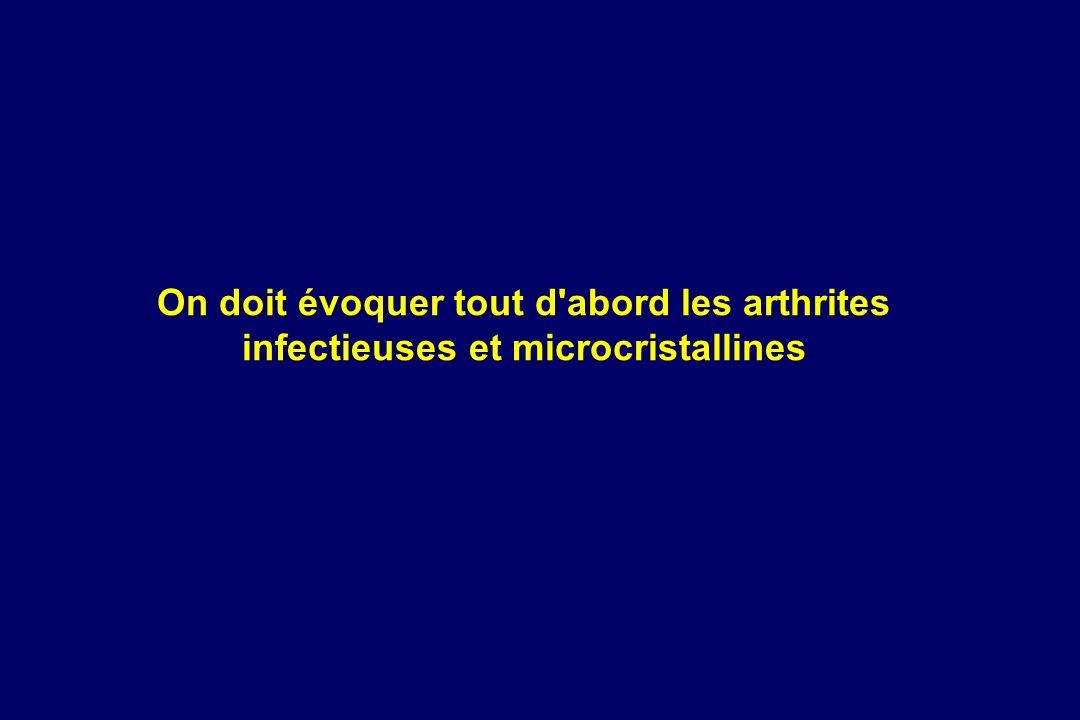 On doit évoquer tout d'abord les arthrites infectieuses et microcristallines