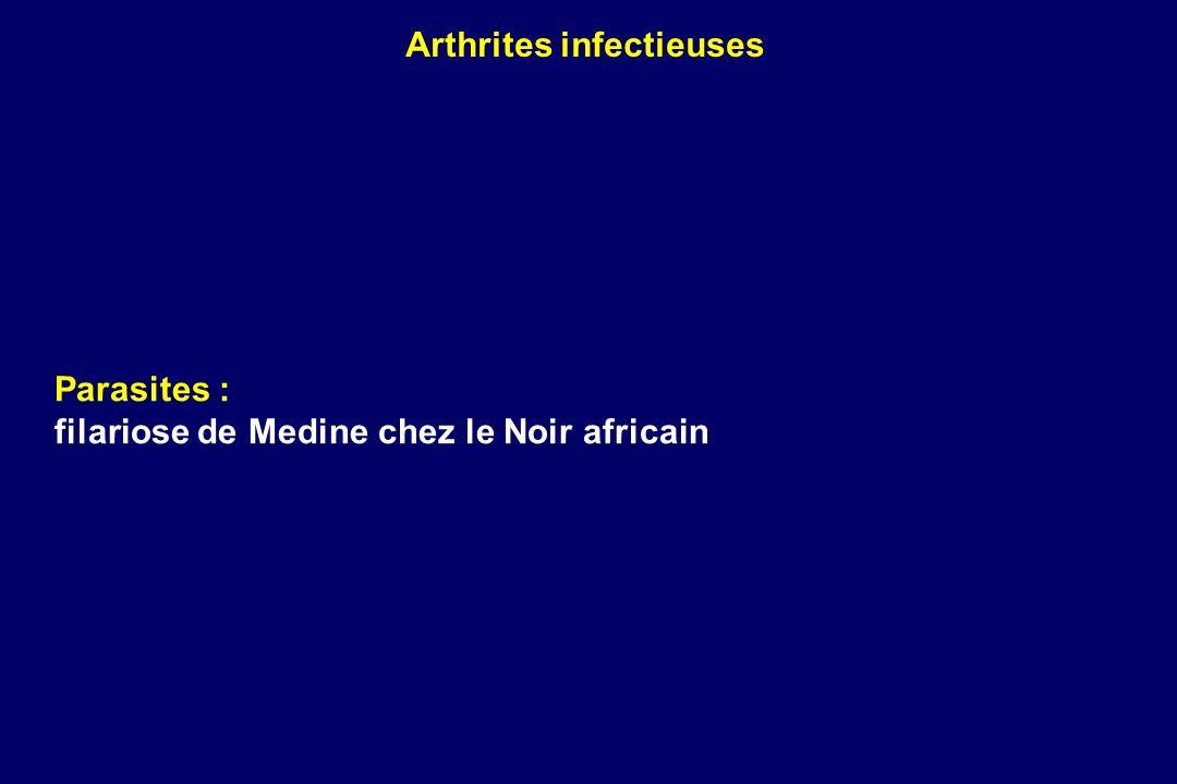 Parasites : filariose de Medine chez le Noir africain Arthrites infectieuses