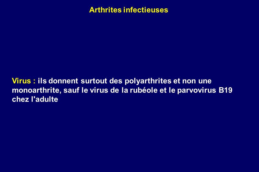 Virus : ils donnent surtout des polyarthrites et non une monoarthrite, sauf le virus de la rubéole et le parvovirus B19 chez l'adulte Arthrites infect