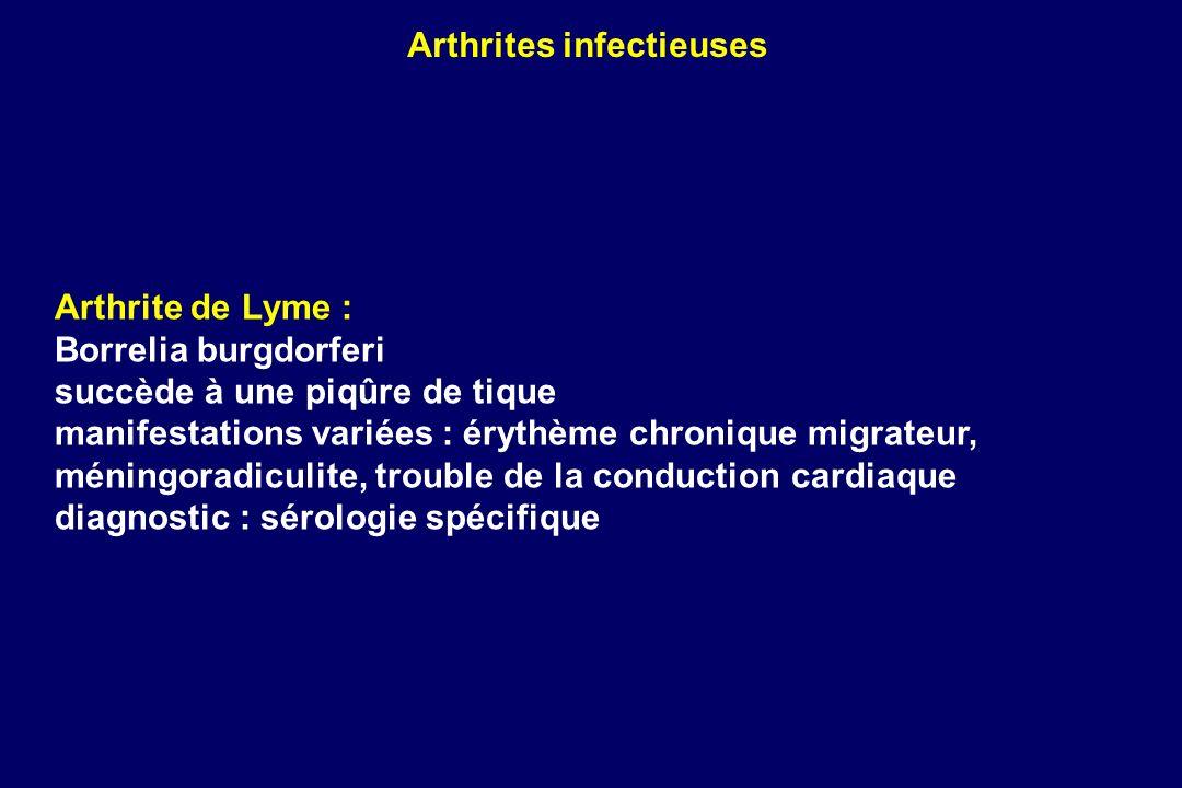Arthrite de Lyme : Borrelia burgdorferi succède à une piqûre de tique manifestations variées : érythème chronique migrateur, méningoradiculite, troubl