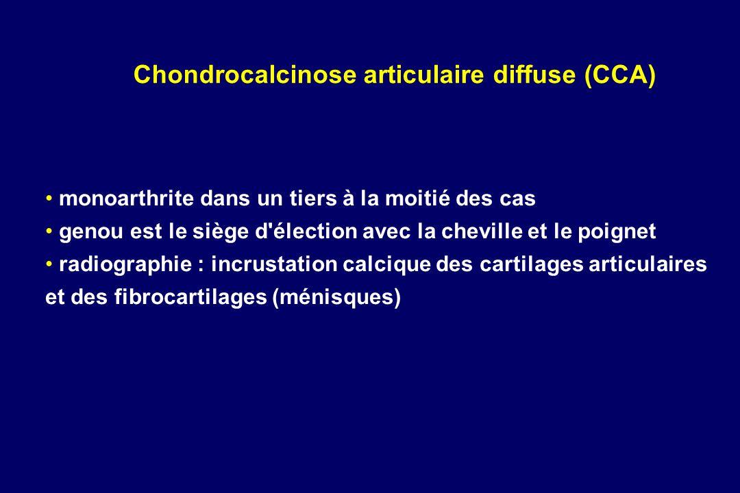 monoarthrite dans un tiers à la moitié des cas genou est le siège d'élection avec la cheville et le poignet radiographie : incrustation calcique des c