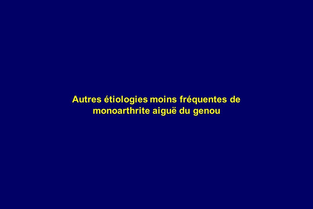 Autres étiologies moins fréquentes de monoarthrite aiguë du genou