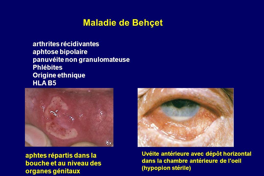 arthrites récidivantes aphtose bipolaire panuvéite non granulomateuse Phlébites Origine ethnique HLA B5 Maladie de Behçet Uvéite antérieure avec dépôt