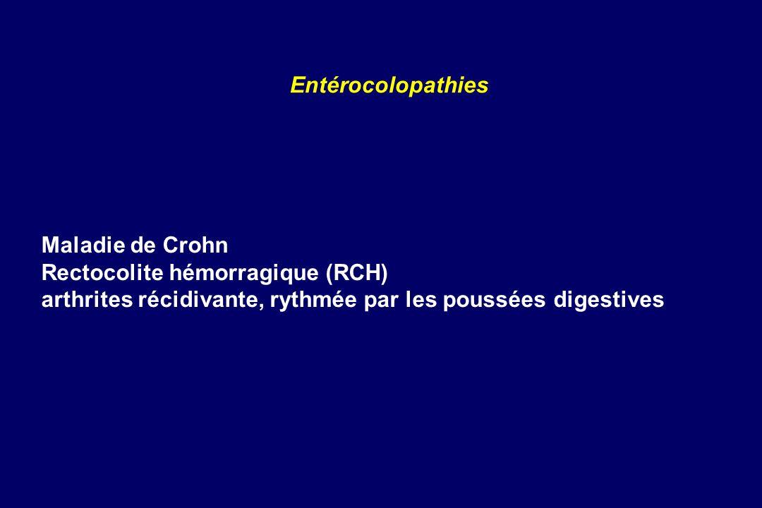 Maladie de Crohn Rectocolite hémorragique (RCH) arthrites récidivante, rythmée par les poussées digestives Entérocolopathies
