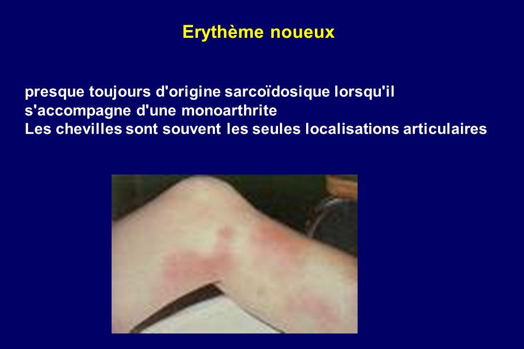 presque toujours d'origine sarcoïdosique lorsqu'il s'accompagne d'une monoarthrite Les chevilles sont souvent les seules localisations articulaires Er