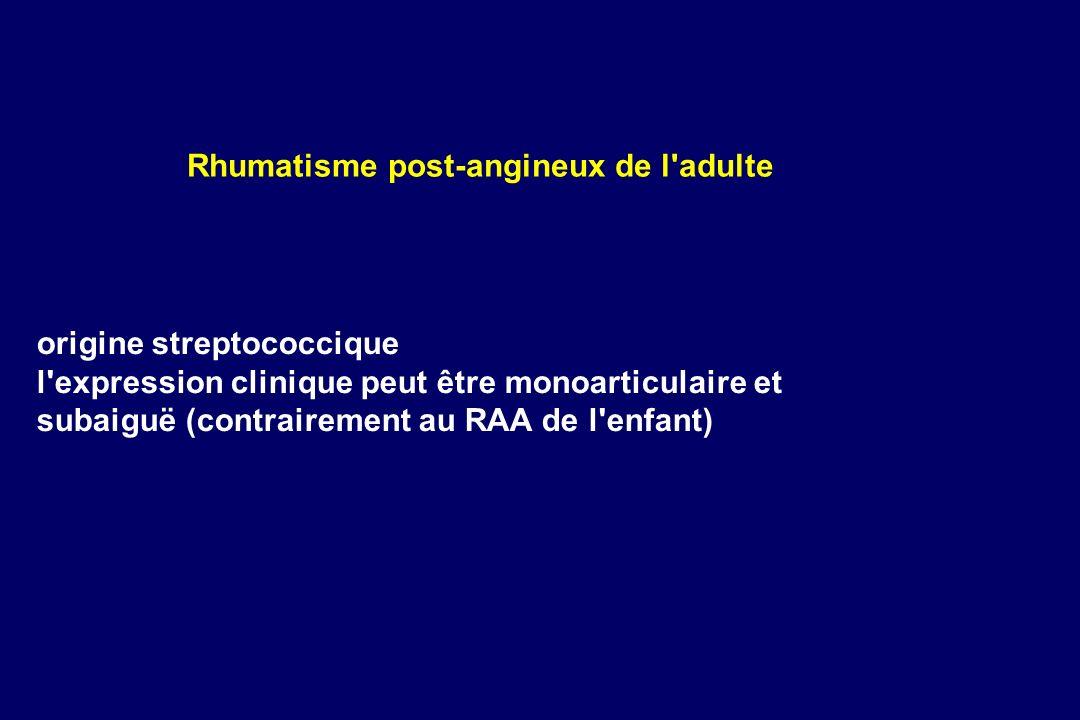 origine streptococcique l'expression clinique peut être monoarticulaire et subaiguë (contrairement au RAA de l'enfant) Rhumatisme post-angineux de l'a