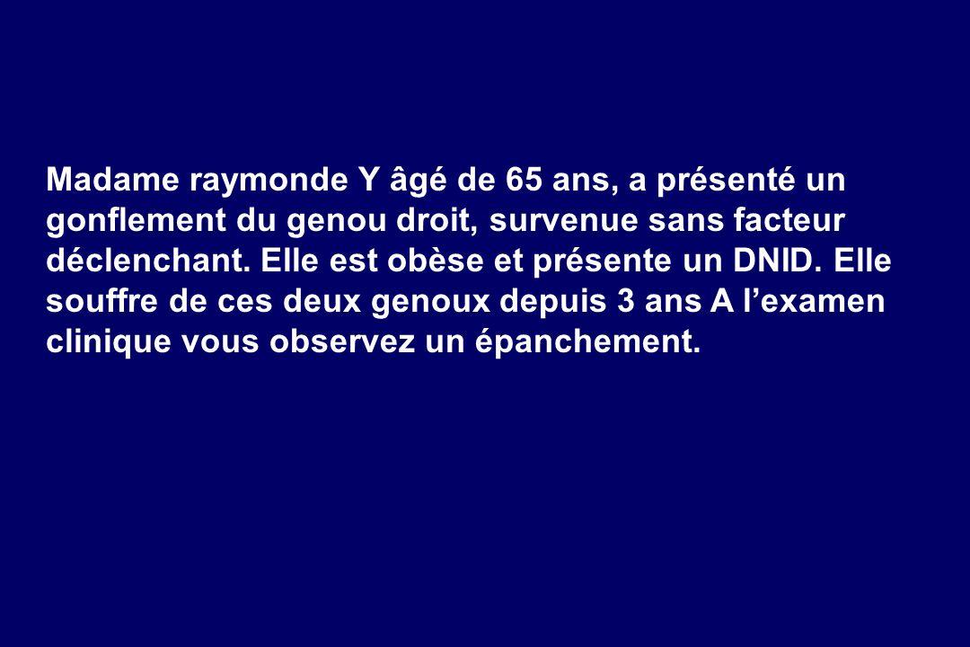Madame raymonde Y âgé de 65 ans, a présenté un gonflement du genou droit, survenue sans facteur déclenchant. Elle est obèse et présente un DNID. Elle