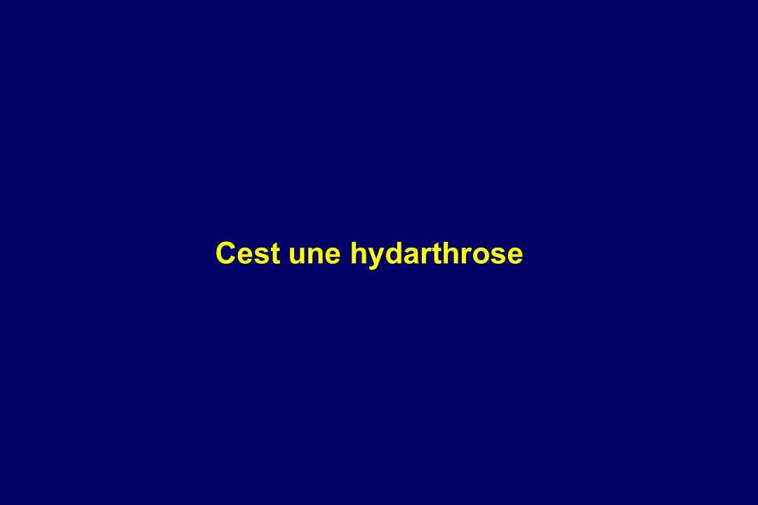 Cest une hydarthrose
