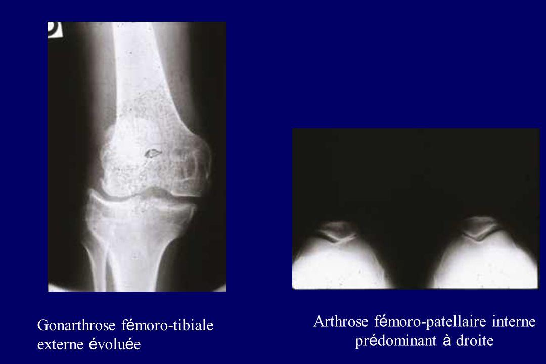 Gonarthrose f é moro-tibiale externe é volu é e Arthrose f é moro-patellaire interne pr é dominant à droite