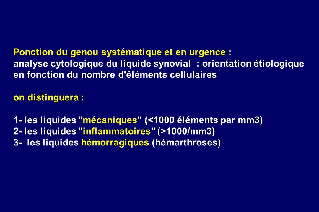 Ponction du genou systématique et en urgence : analyse cytologique du liquide synovial : orientation étiologique en fonction du nombre d'éléments cell