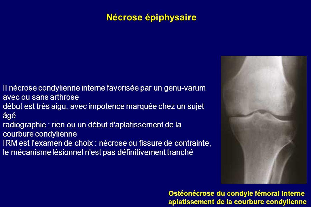 Il nécrose condylienne interne favorisée par un genu-varum avec ou sans arthrose début est très aigu, avec impotence marquée chez un sujet âgé radiogr