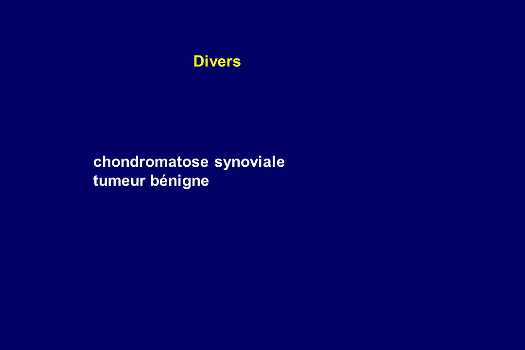 chondromatose synoviale tumeur bénigne Divers
