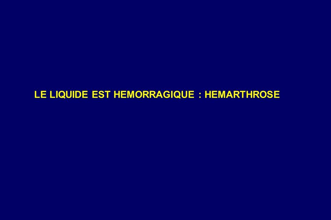LE LIQUIDE EST HEMORRAGIQUE : HEMARTHROSE