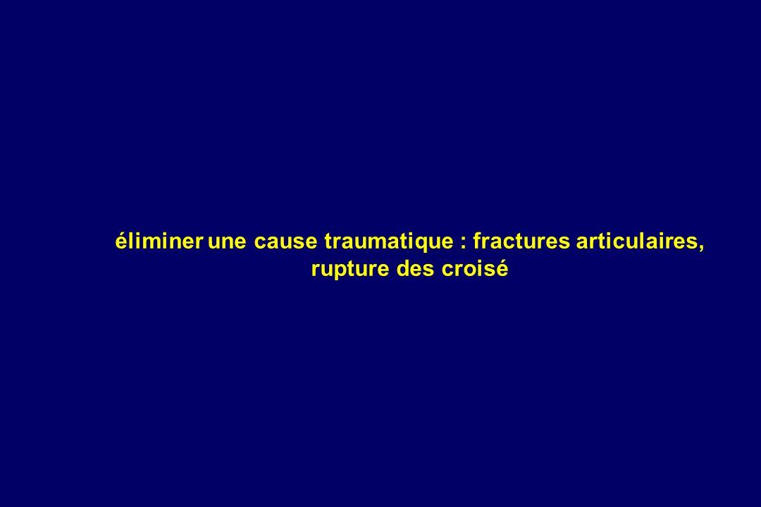 éliminer une cause traumatique : fractures articulaires, rupture des croisé