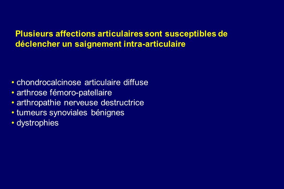 chondrocalcinose articulaire diffuse arthrose fémoro-patellaire arthropathie nerveuse destructrice tumeurs synoviales bénignes dystrophies Plusieurs a