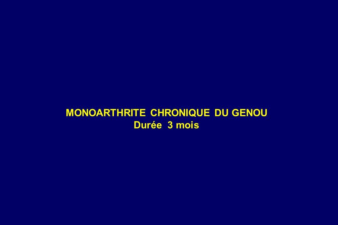 MONOARTHRITE CHRONIQUE DU GENOU Durée 3 mois