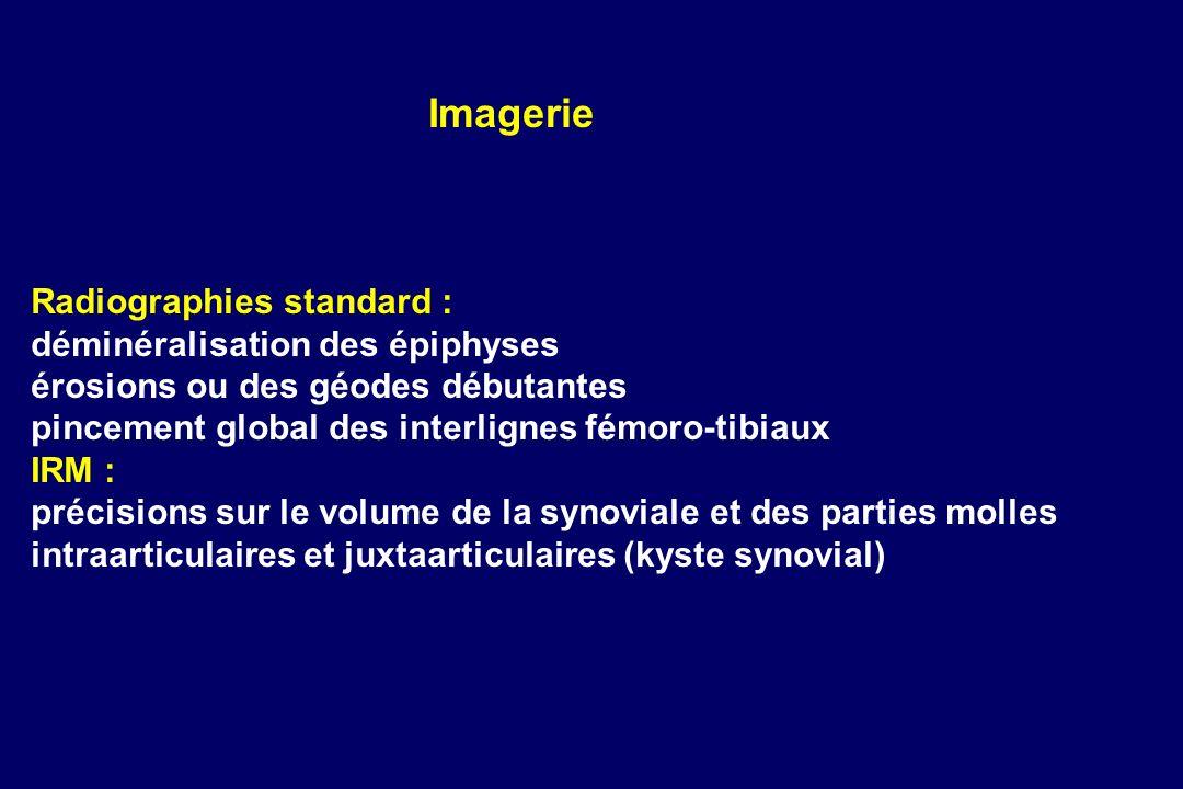 Radiographies standard : déminéralisation des épiphyses érosions ou des géodes débutantes pincement global des interlignes fémoro-tibiaux IRM : précis