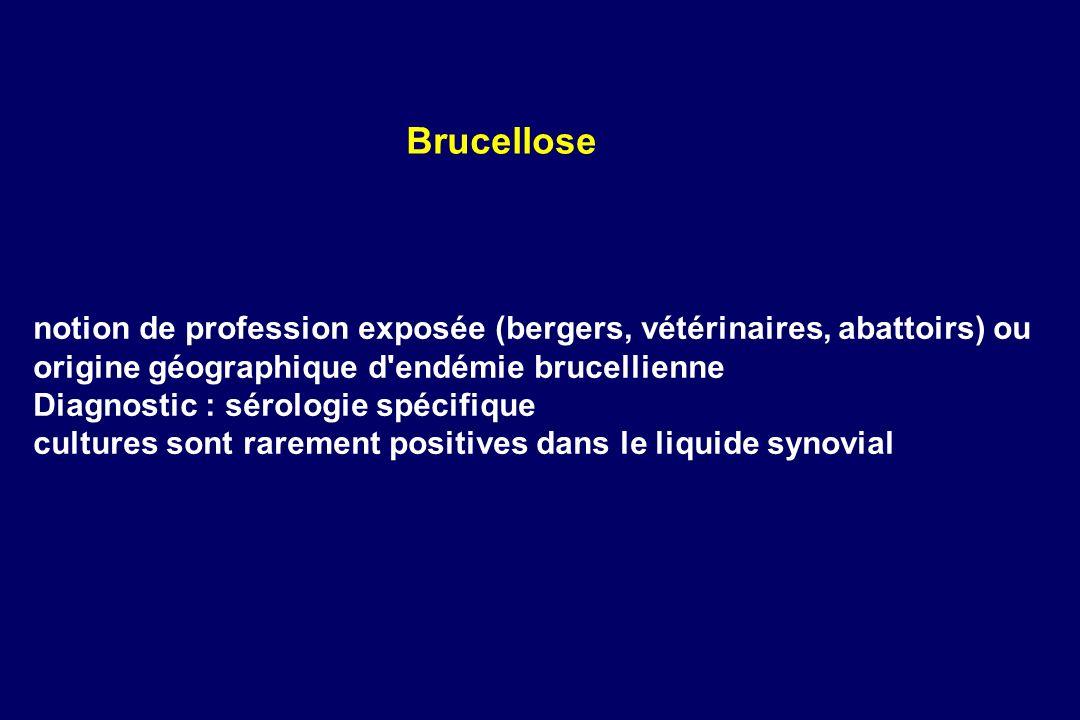 notion de profession exposée (bergers, vétérinaires, abattoirs) ou origine géographique d'endémie brucellienne Diagnostic : sérologie spécifique cultu