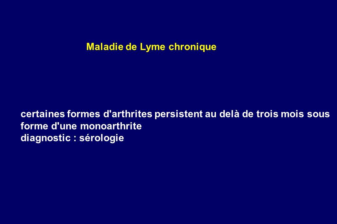 certaines formes d'arthrites persistent au delà de trois mois sous forme d'une monoarthrite diagnostic : sérologie Maladie de Lyme chronique