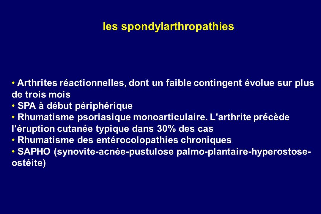 Arthrites réactionnelles, dont un faible contingent évolue sur plus de trois mois SPA à début périphérique Rhumatisme psoriasique monoarticulaire. L'a