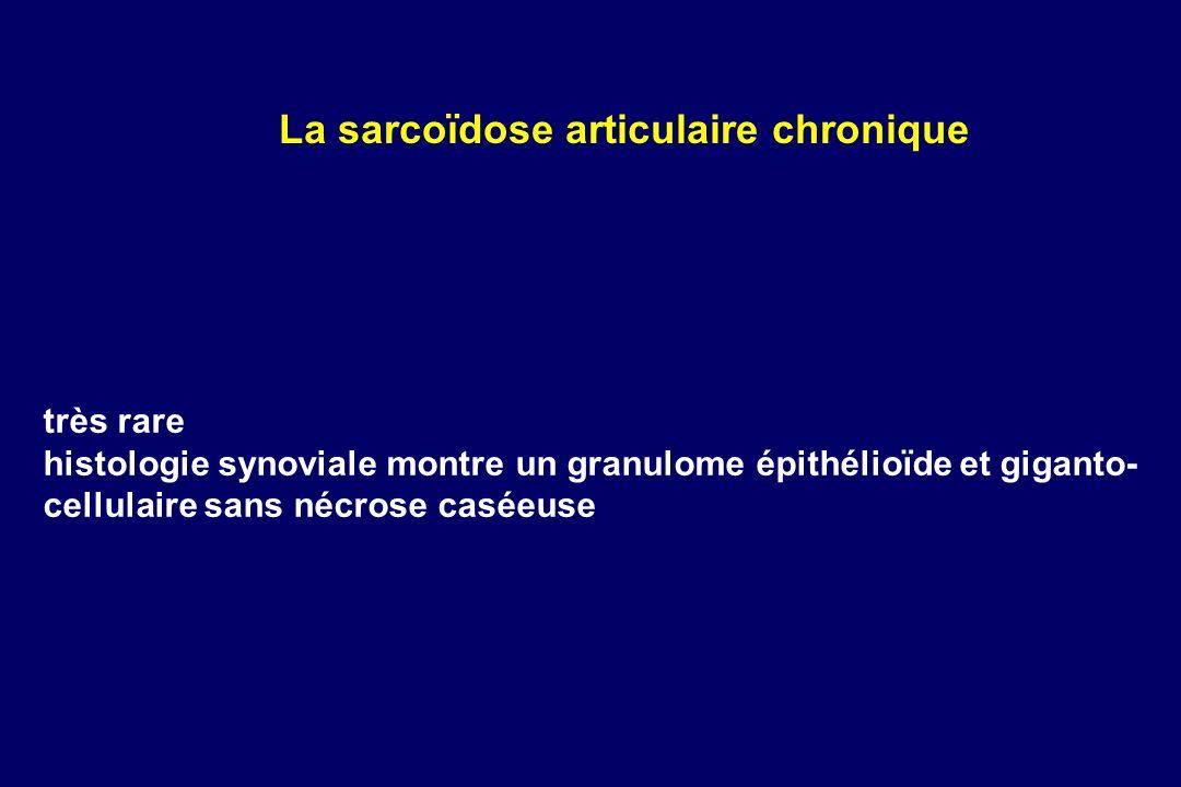 très rare histologie synoviale montre un granulome épithélioïde et giganto- cellulaire sans nécrose caséeuse La sarcoïdose articulaire chronique