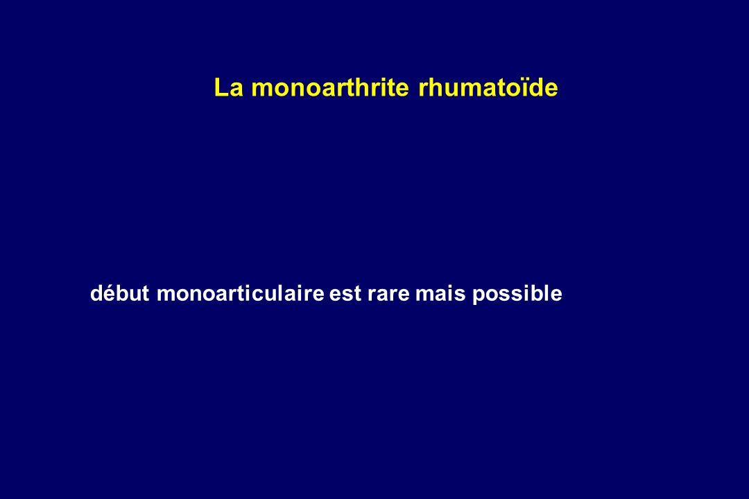 début monoarticulaire est rare mais possible La monoarthrite rhumatoïde
